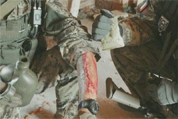 Una seconda pelle per il sofrtgunner ferito